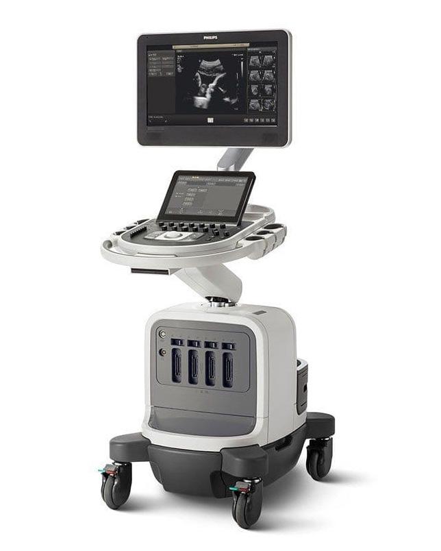 ultrasonografia 2