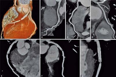 tomografia tętnic
